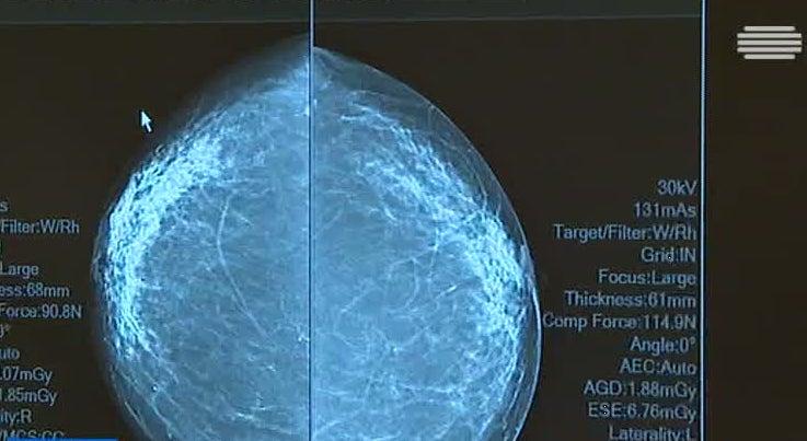 País - Células do cancro da mama podem dessiminar-se antes de tumor ser palpável