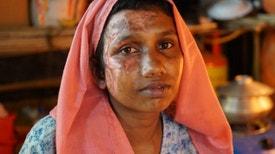 Campos de Morte em Mianmar