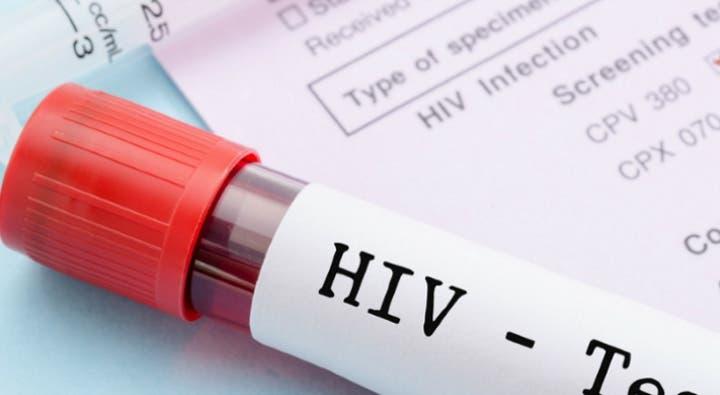 A cada três minutos uma rapariga foi infetada com sida em 2017 ... 52d9d44f2fd4