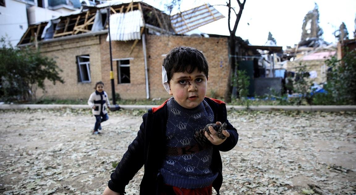 Criança ferida em bombardeamento   Umit Bektas - Reuters