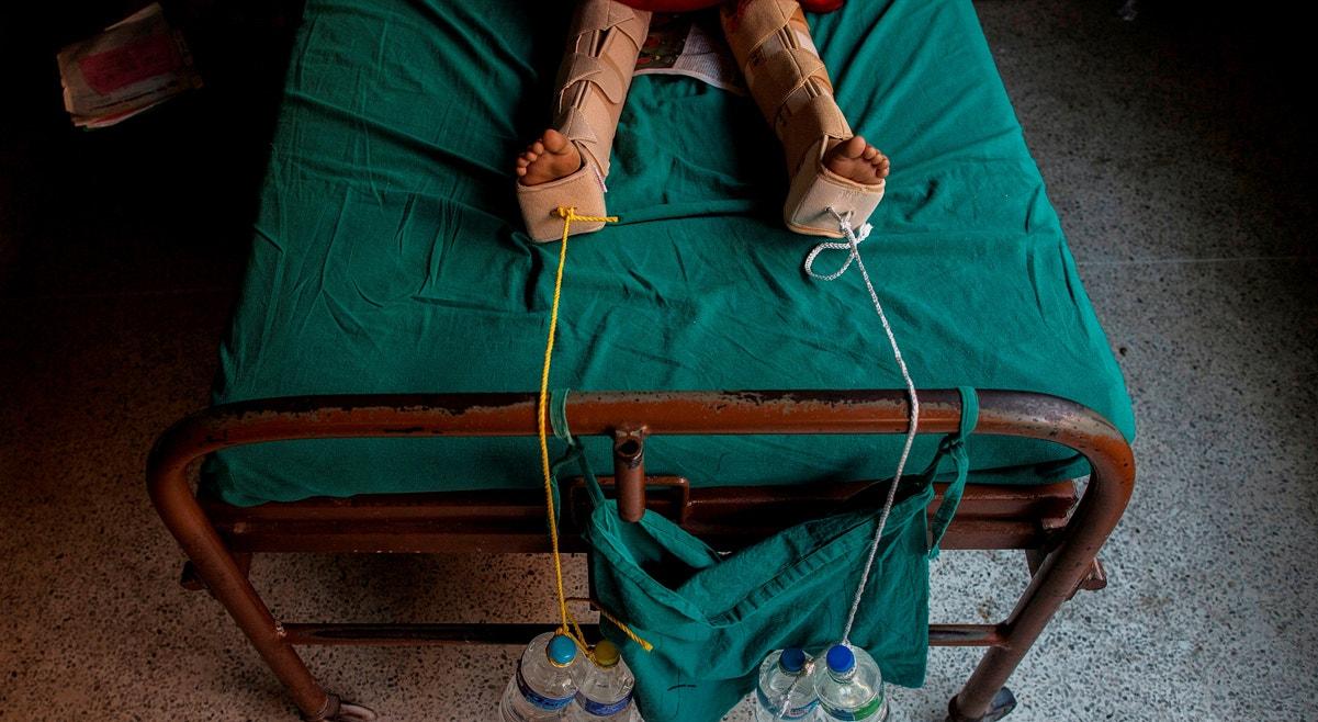 Catmandu.Tratamento com cordas carregadas com garrafas de água aplicam tração nas pernas de uma menina ferida no terramoto | Danish Siddiqui - Reuters